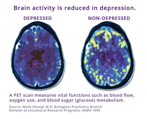 Brain activity is reduced in Depression